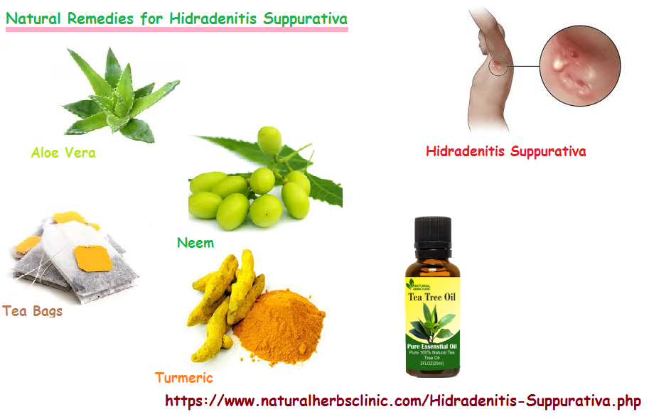 hidradenitis suppurativa natural remedies